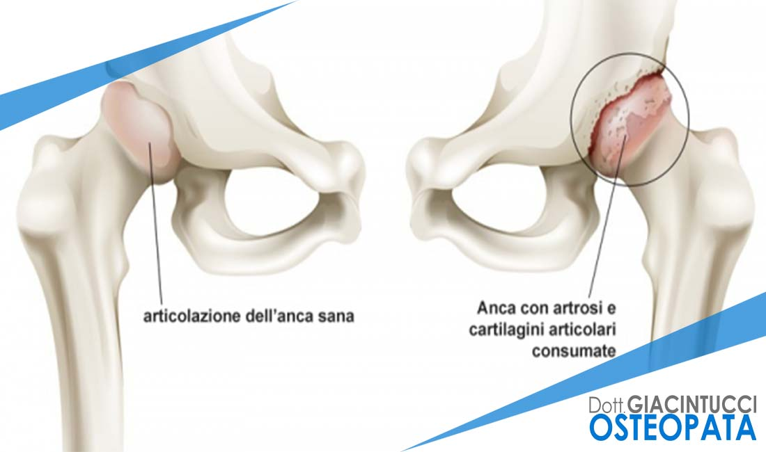 Artrosi Nicola Giacintucci osteopata Milano